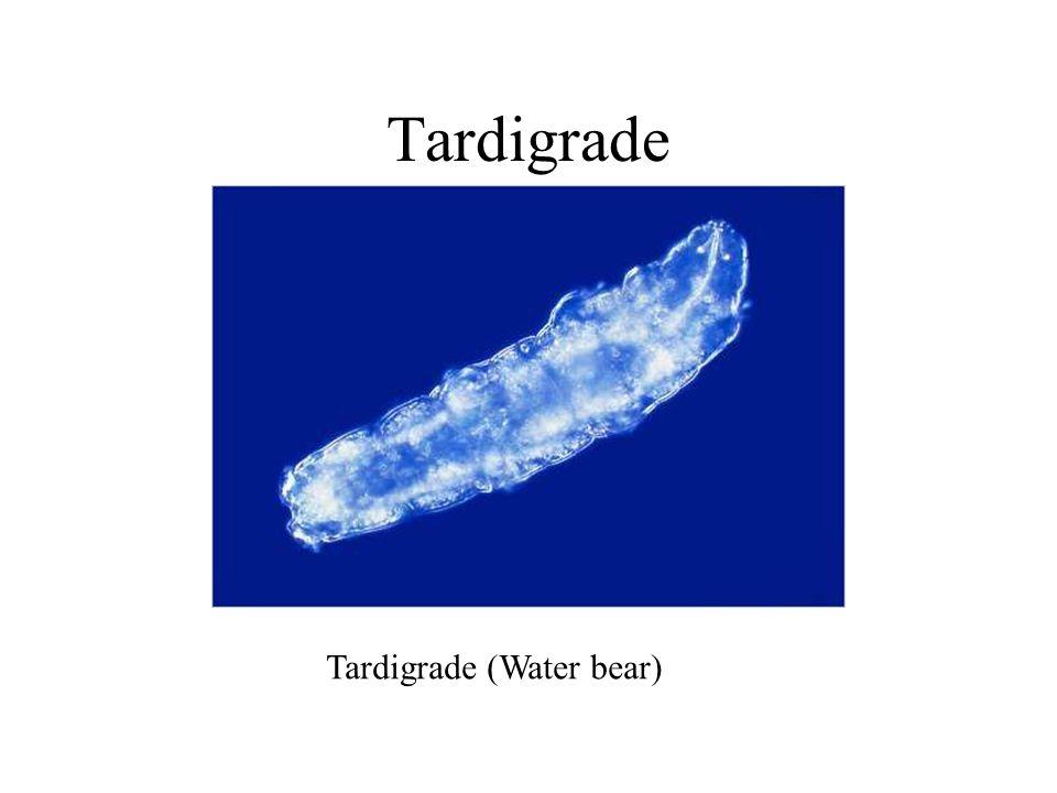 Tardigrade Tardigrade (Water bear)