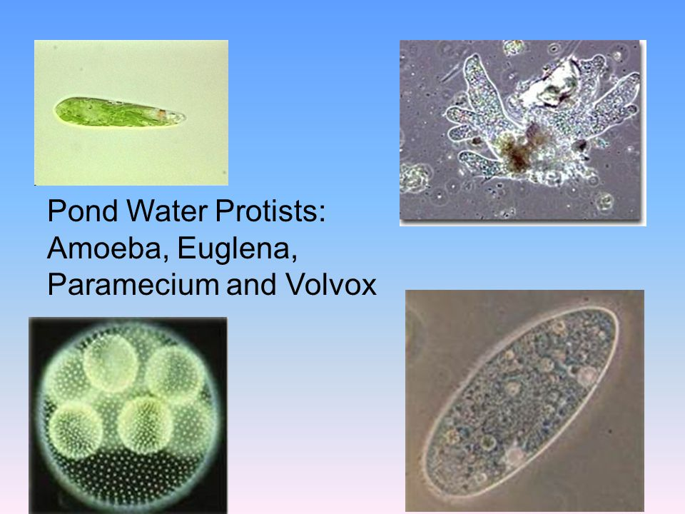Pond Water Protists: Amoeba, Euglena, Paramecium and Volvox