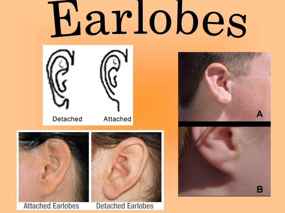 Earlobes