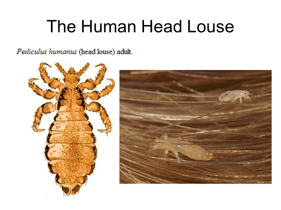 The Human Head Louse