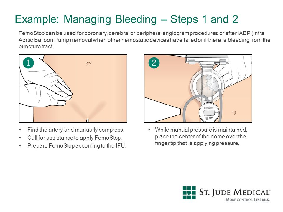 Example: Managing Bleeding – Steps 1 and 2