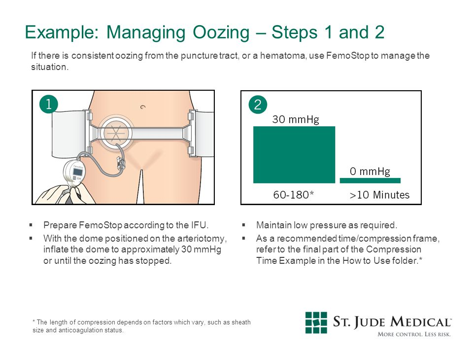 Example: Managing Oozing – Steps 1 and 2