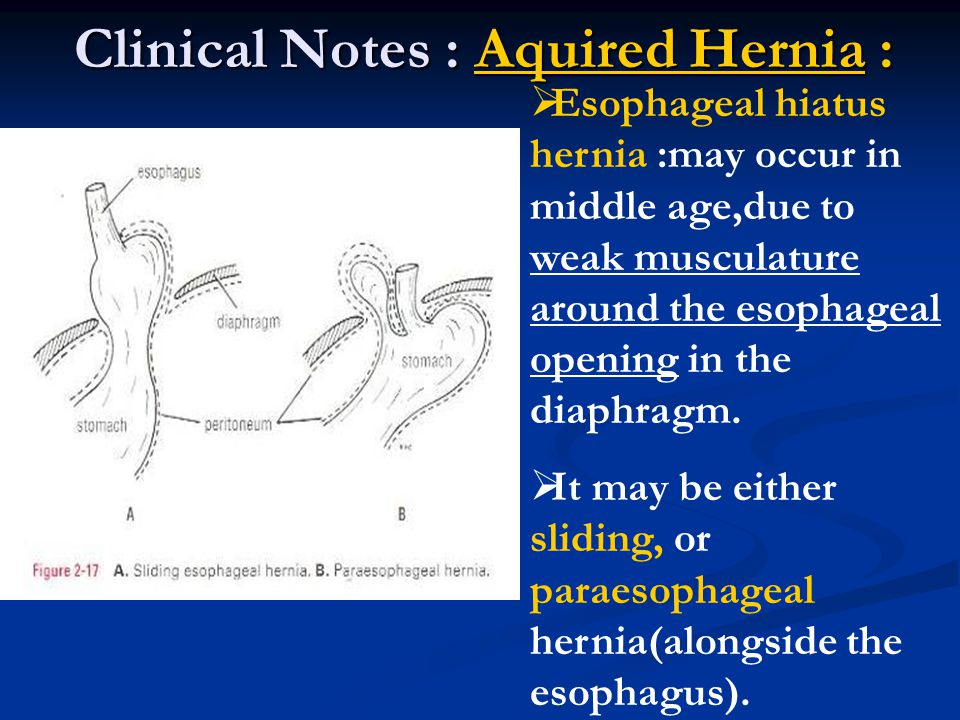 Clinical Notes : Aquired Hernia :
