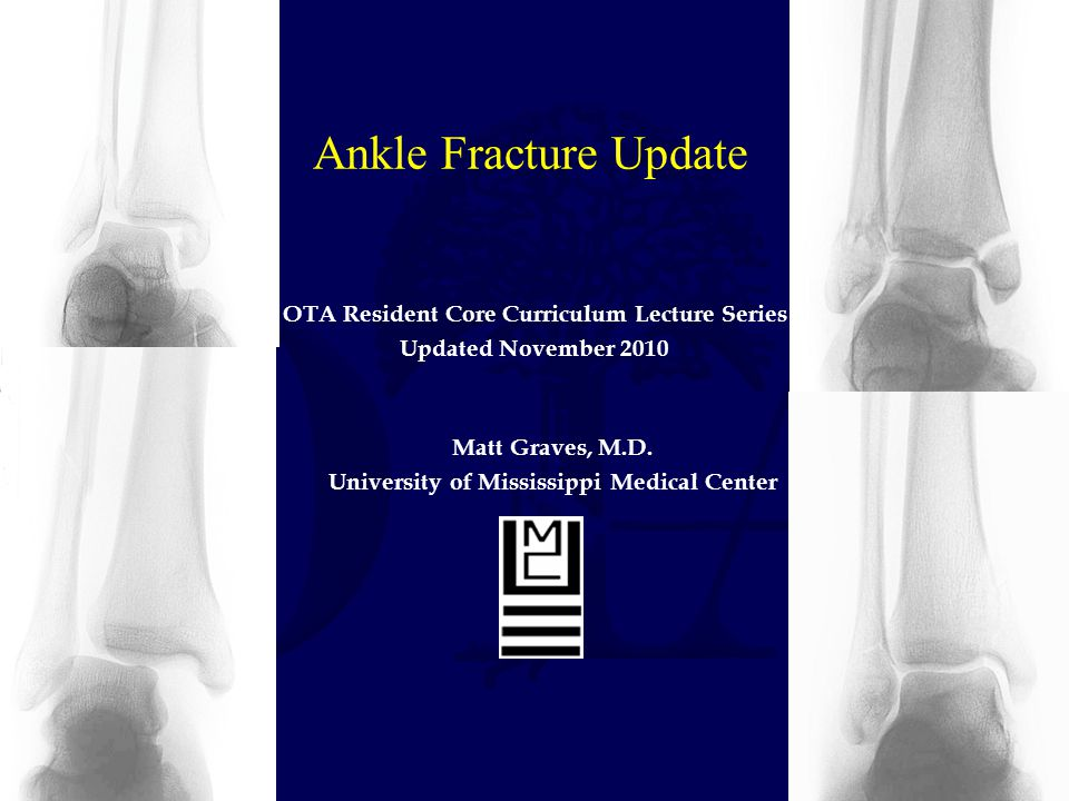 Ankle Fracture Update OTA Resident Core Curriculum Lecture Series
