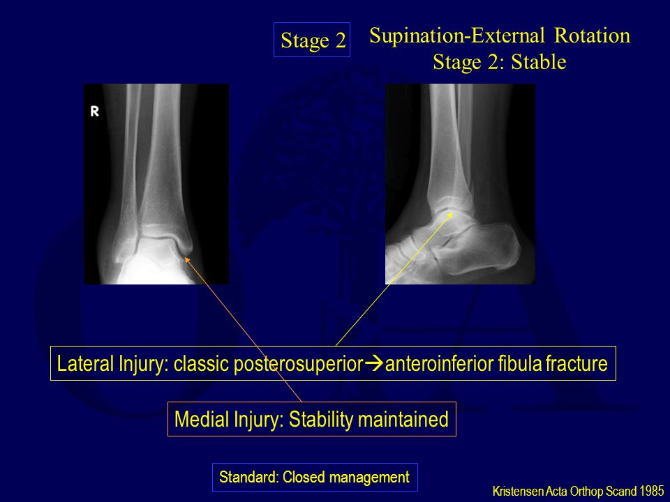 Supination-External Rotation Stage 2: Stable