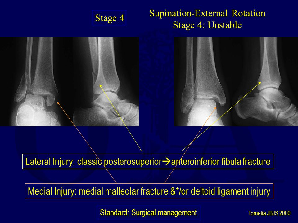 Supination-External Rotation Stage 4: Unstable