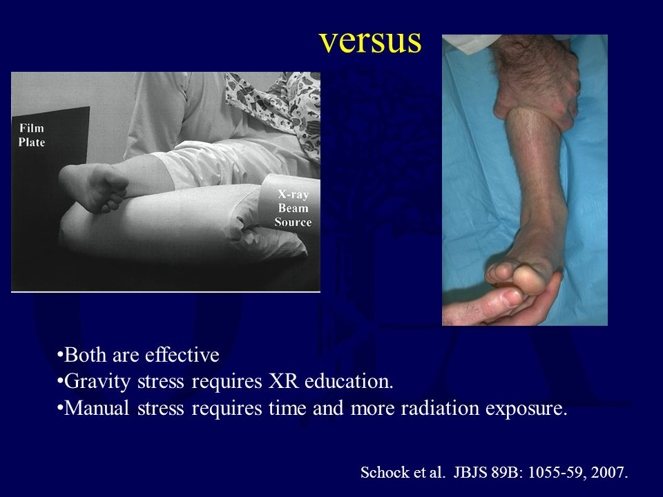 versus Both are effective Gravity stress requires XR education.