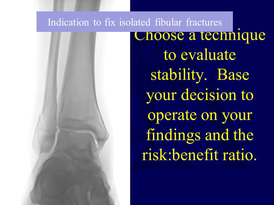 Indication to fix isolated fibular fractures