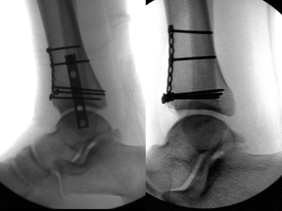 Note the difference in these two lateral ankle radiographs