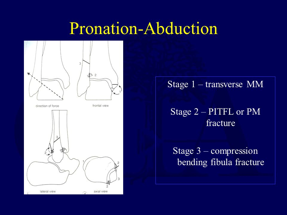 Pronation-Abduction Stage 1 – transverse MM Stage 2 – PITFL or PM fracture Stage 3 – compression bending fibula fracture
