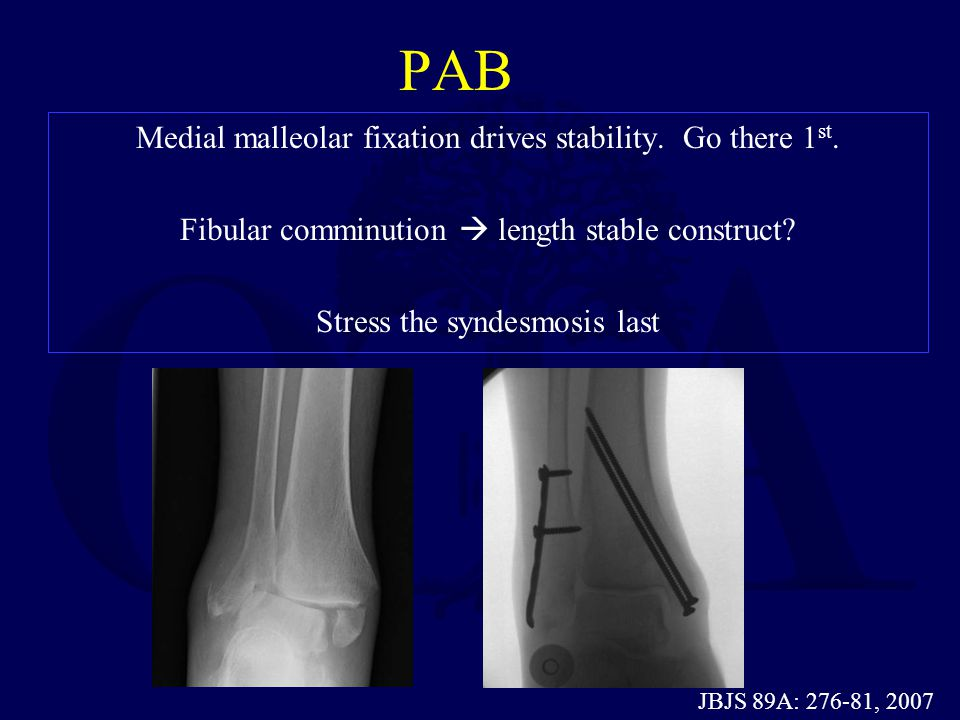 PAB Medial malleolar fixation drives stability. Go there 1st. Fibular comminution  length stable construct Stress the syndesmosis last