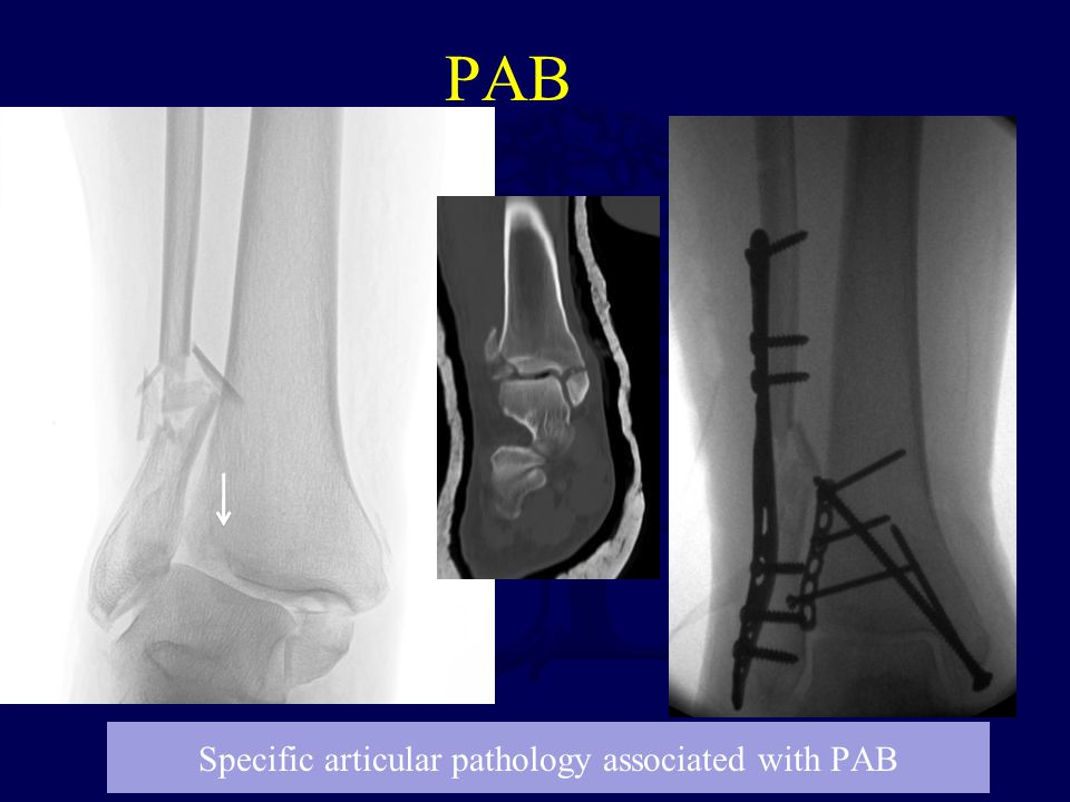 Specific articular pathology associated with PAB