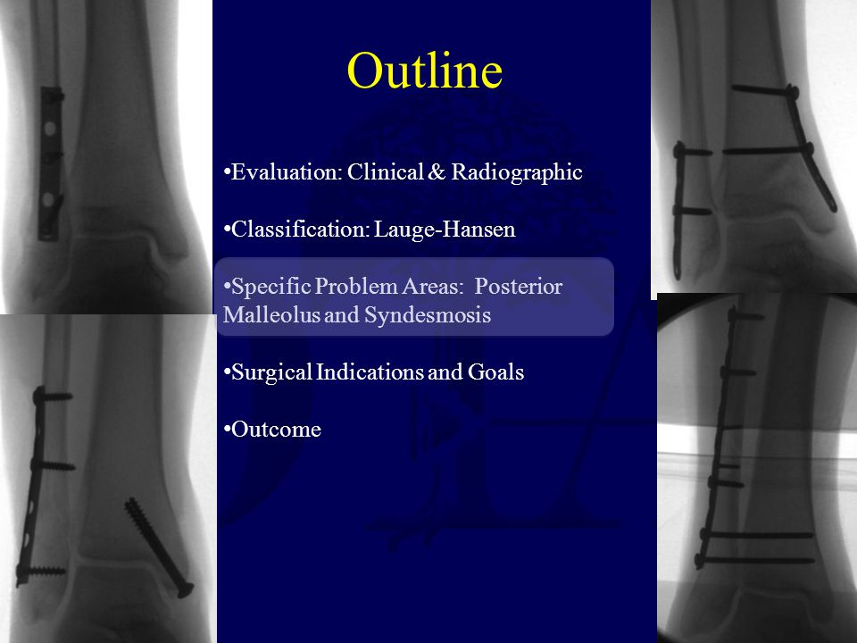 Outline Evaluation: Clinical & Radiographic