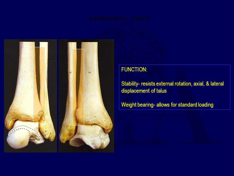 Syndesmotic Injury FUNCTION: