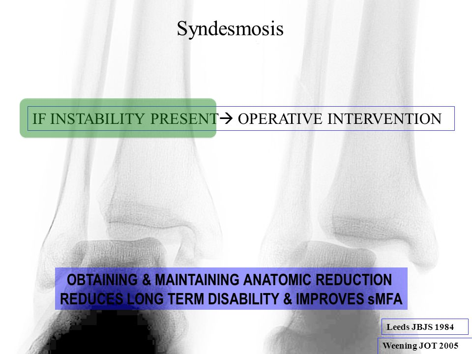 Syndesmosis IF INSTABILITY PRESENT OPERATIVE INTERVENTION