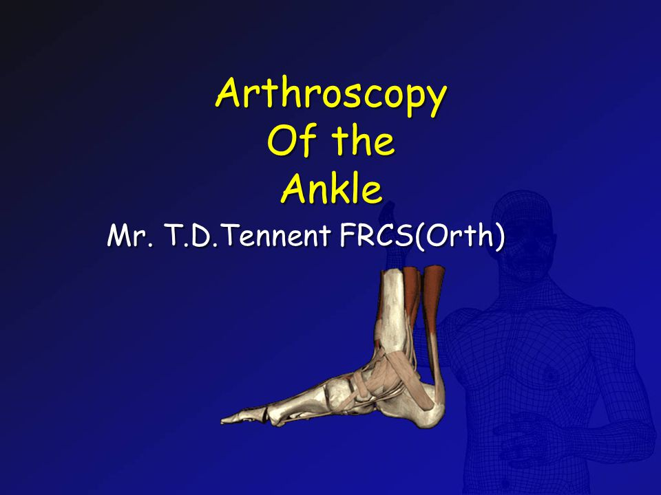 Arthroscopy Of the Ankle Mr. T.D.Tennent FRCS(Orth)