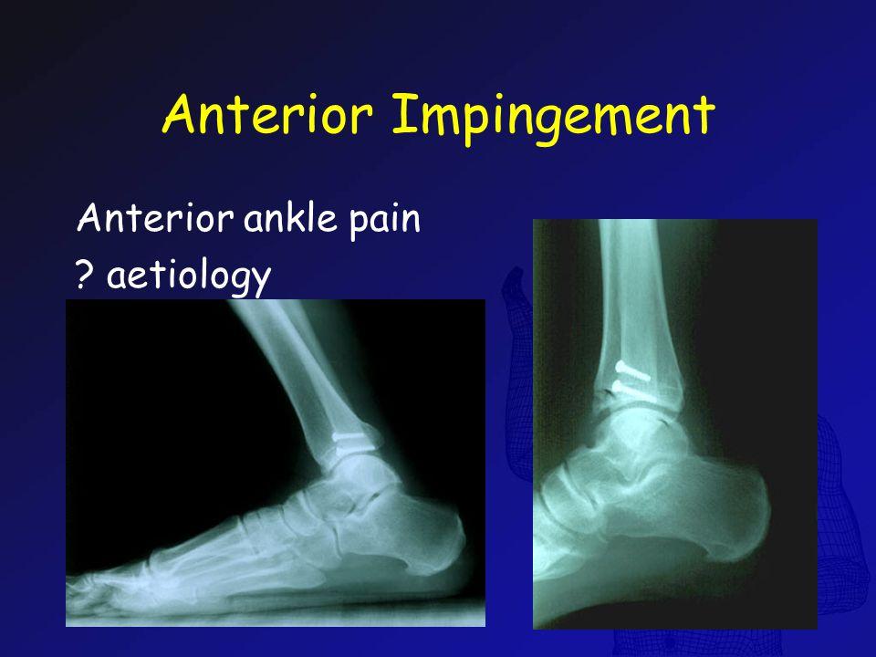 Anterior Impingement Anterior ankle pain aetiology
