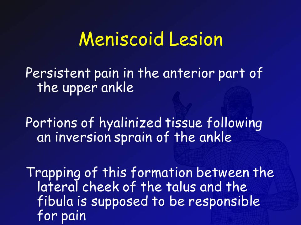 Meniscoid Lesion Persistent pain in the anterior part of the upper ankle. Portions of hyalinized tissue following an inversion sprain of the ankle.