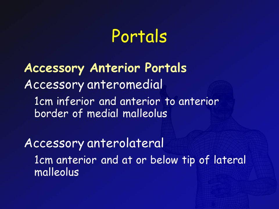 Portals Accessory Anterior Portals Accessory anteromedial