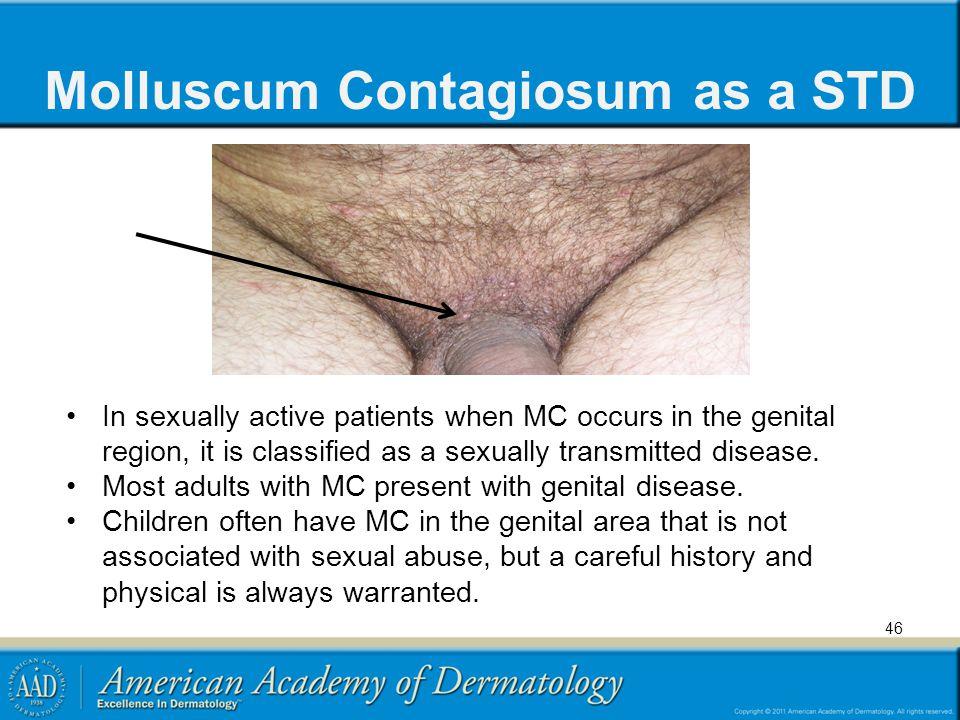 Molluscum Contagiosum as a STD