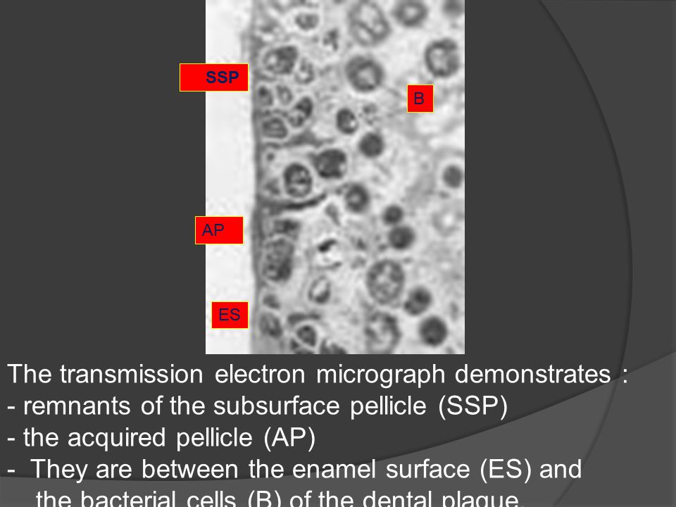 The transmission electron micrograph demonstrates :