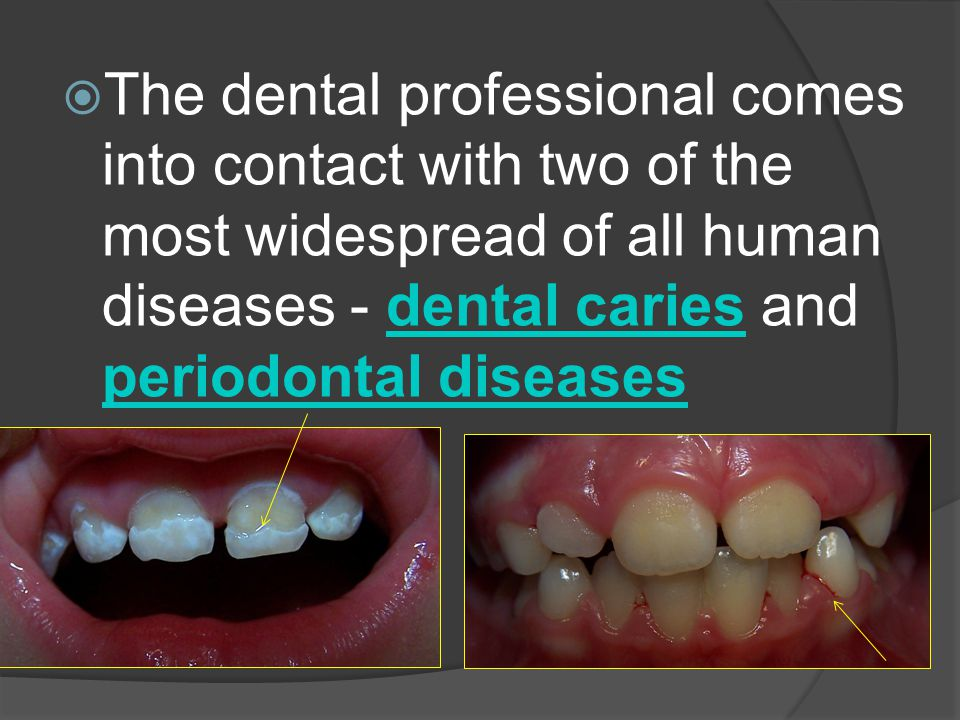 The dental professional comes into contact with two of the most widespread of all human diseases - dental caries and periodontal diseases