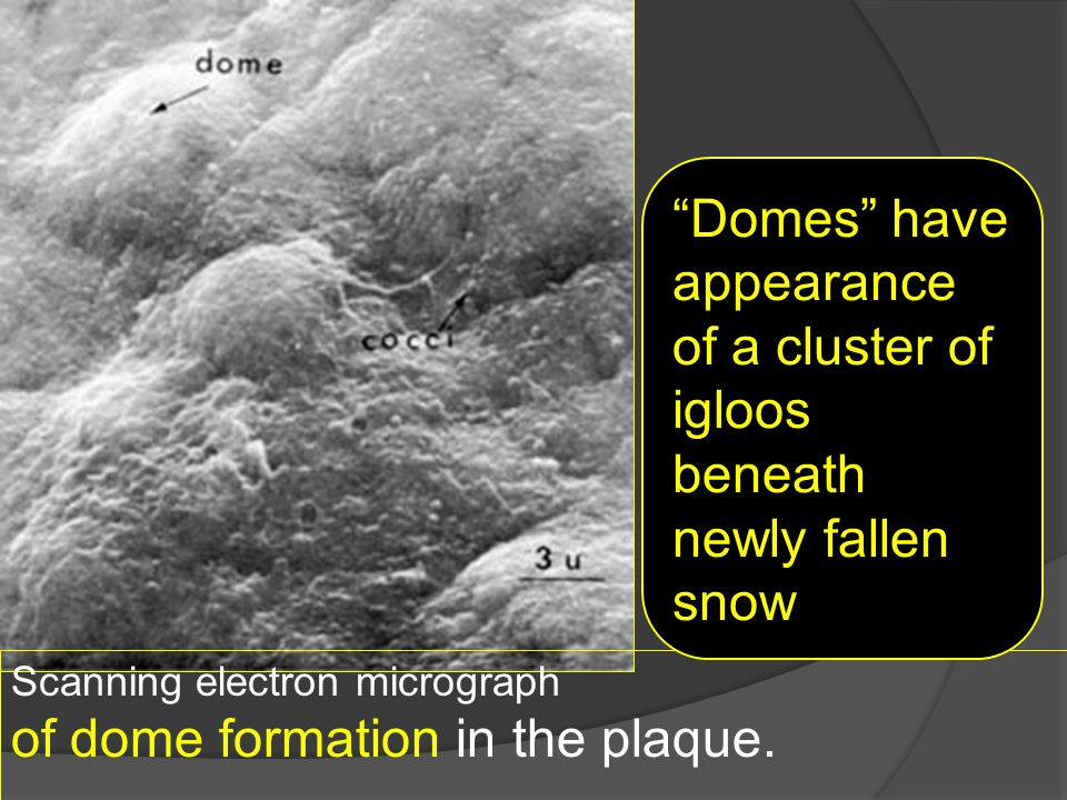 of dome formation in the plaque. .