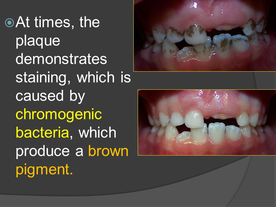 At times, the plaque demonstrates staining, which is caused by chromogenic bacteria, which produce a brown pigment.