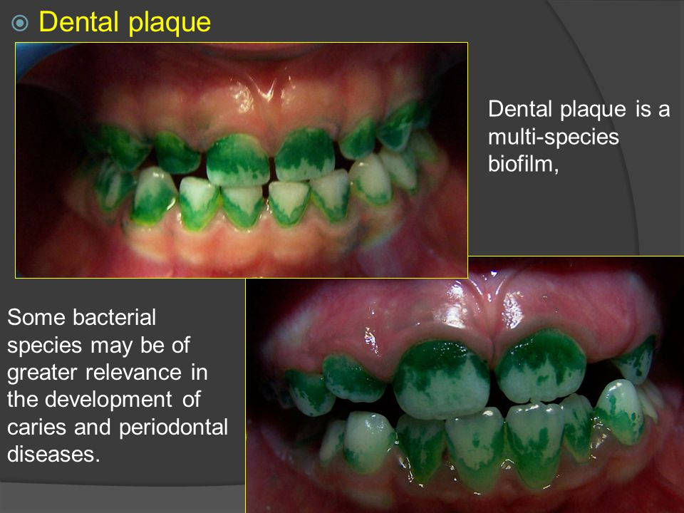 Dental plaque Dental plaque is a multi-species biofilm,