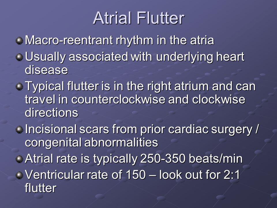 Atrial Flutter Macro-reentrant rhythm in the atria