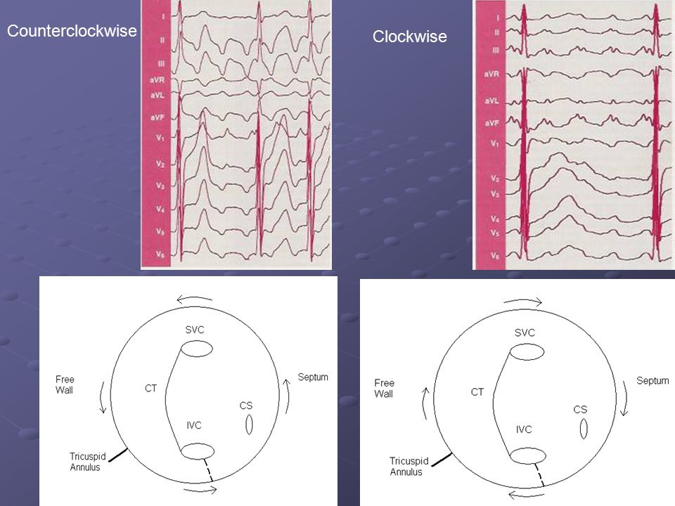 Counterclockwise Clockwise