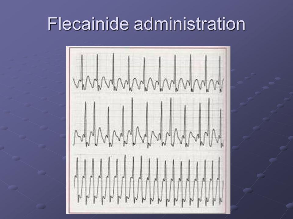 Flecainide administration