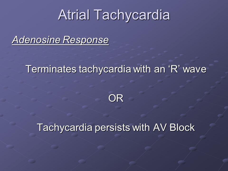 Atrial Tachycardia Adenosine Response