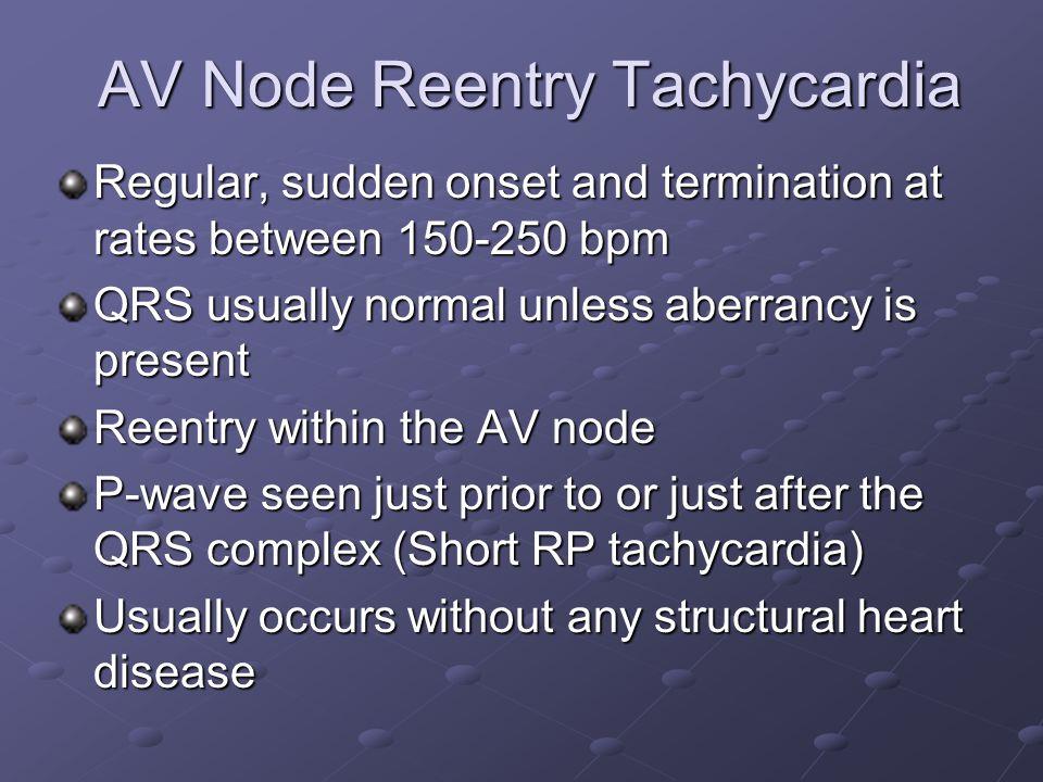 AV Node Reentry Tachycardia