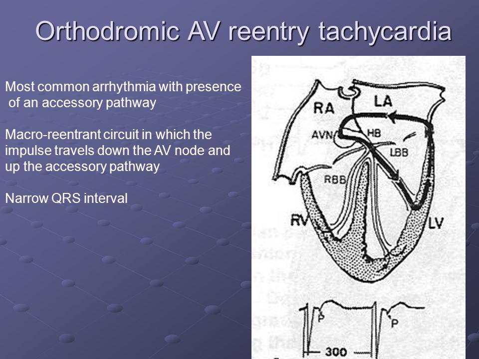 Orthodromic AV reentry tachycardia
