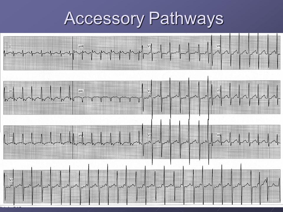 Accessory Pathways