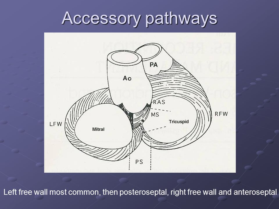Accessory pathways Left free wall most common, then posteroseptal, right free wall and anteroseptal