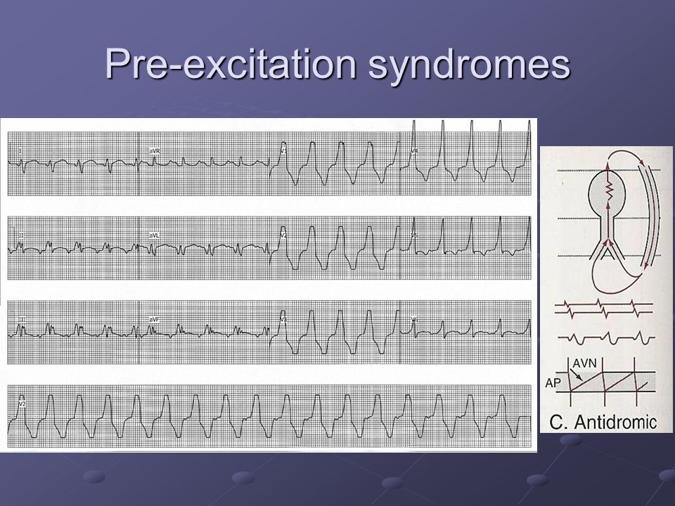 Pre-excitation syndromes