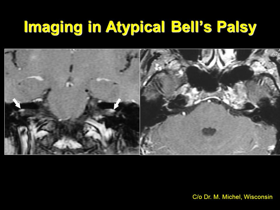 Imaging in Atypical Bell's Palsy