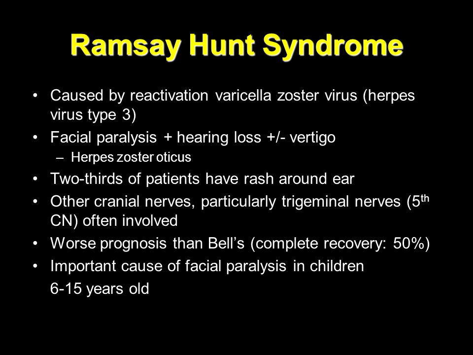 Ramsay Hunt Syndrome Caused by reactivation varicella zoster virus (herpes virus type 3) Facial paralysis + hearing loss +/- vertigo.