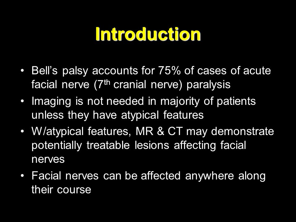 Introduction Bell's palsy accounts for 75% of cases of acute facial nerve (7th cranial nerve) paralysis.
