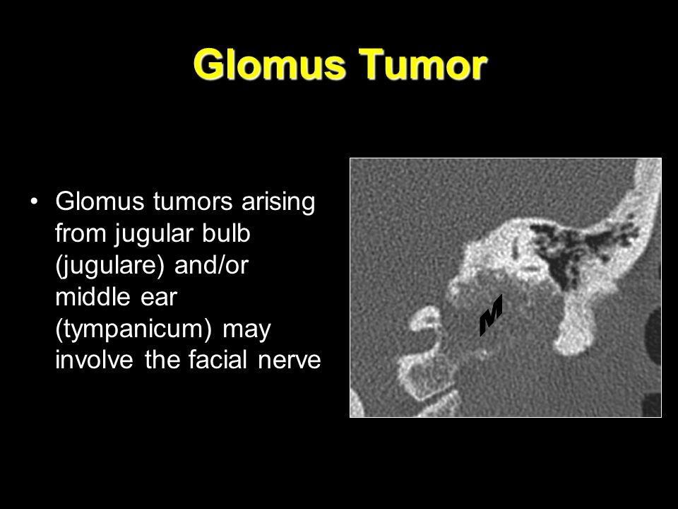 Glomus Tumor Glomus tumors arising from jugular bulb (jugulare) and/or middle ear (tympanicum) may involve the facial nerve.