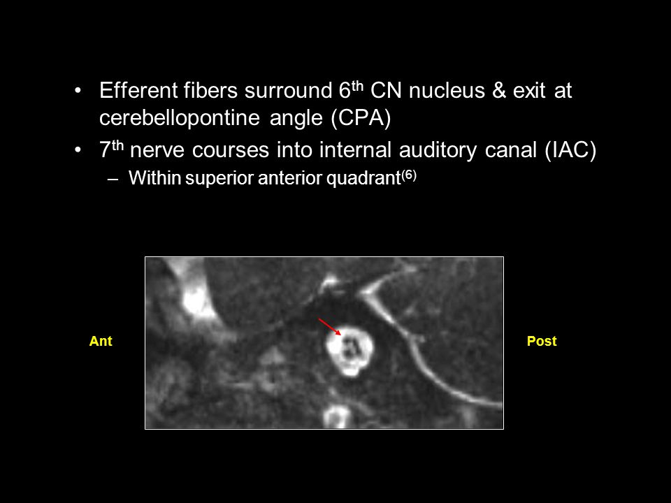 7th nerve courses into internal auditory canal (IAC)