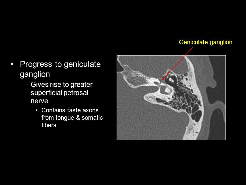 Progress to geniculate ganglion