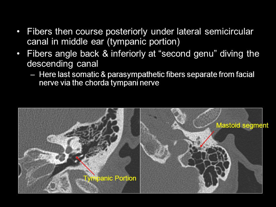Fibers then course posteriorly under lateral semicircular canal in middle ear (tympanic portion)