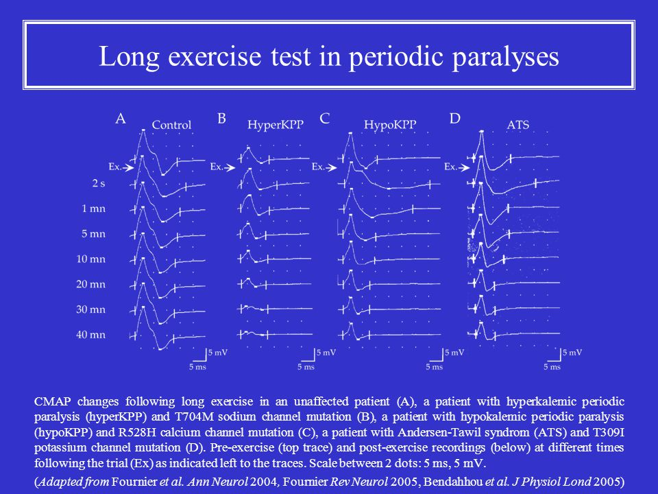 Long exercise test in periodic paralyses