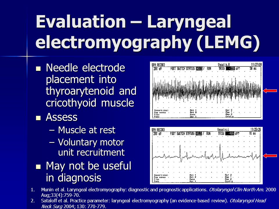 Evaluation – Laryngeal electromyography (LEMG)
