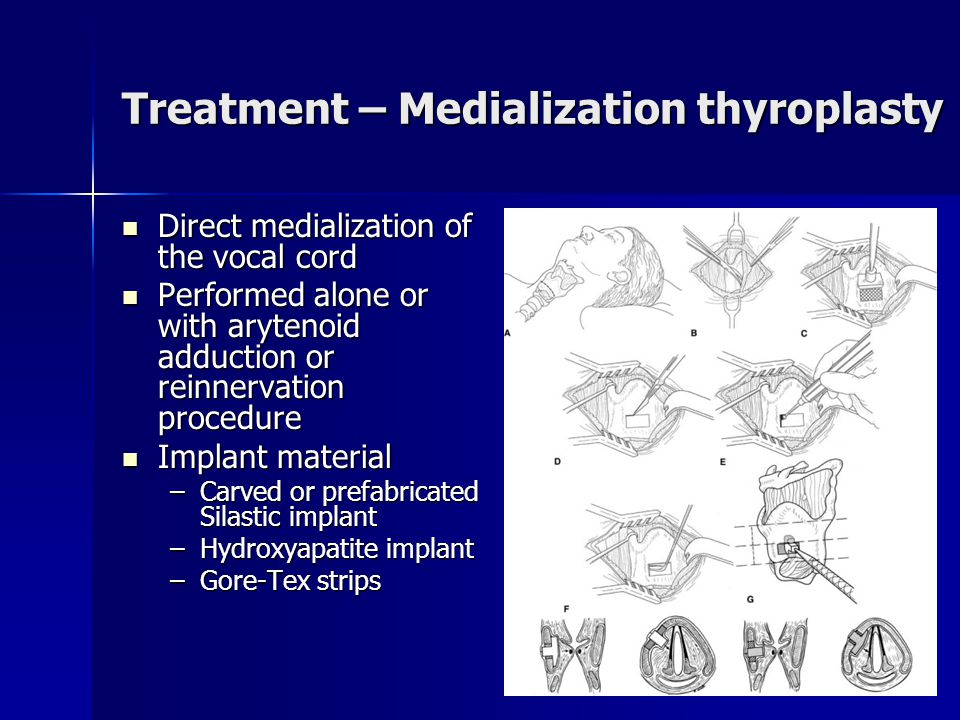 Treatment – Medialization thyroplasty