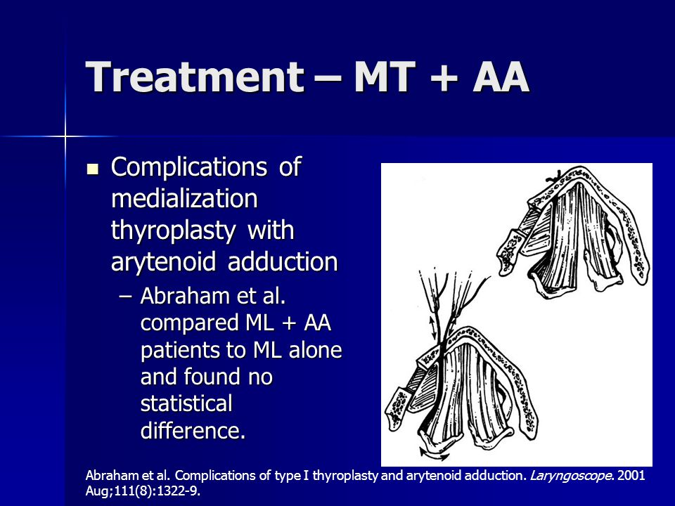 Treatment – MT + AA Complications of medialization thyroplasty with arytenoid adduction.