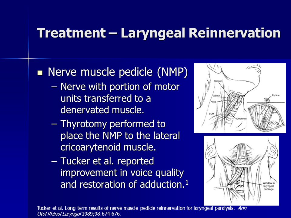 Treatment – Laryngeal Reinnervation